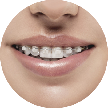 orthodontist cheyenne wy